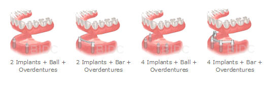 four options for implant-supported overdentures, some with 4 and some with 2 implants