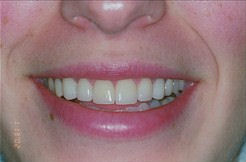 close up of a bright smile after teeth whitening treatment
