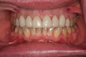 After treatment with porcelain crowns and veneers