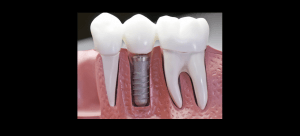 Dental Implants - Restore Your Smile and Functionality!