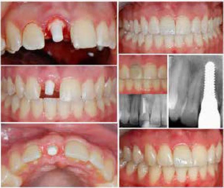 collage of before and after dental implant cases
