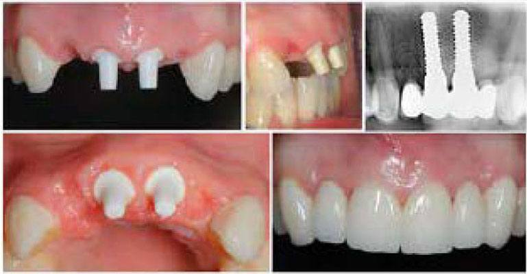 collage of before and after dental implant case