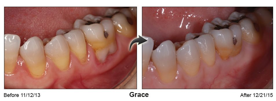 Before-and-after photos with lower back teeth whose roots are repaired by gum surgery