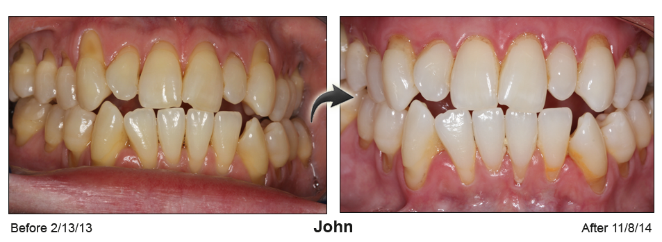 Before-and-after of full mouth of teeth with surgery to repair receding gums