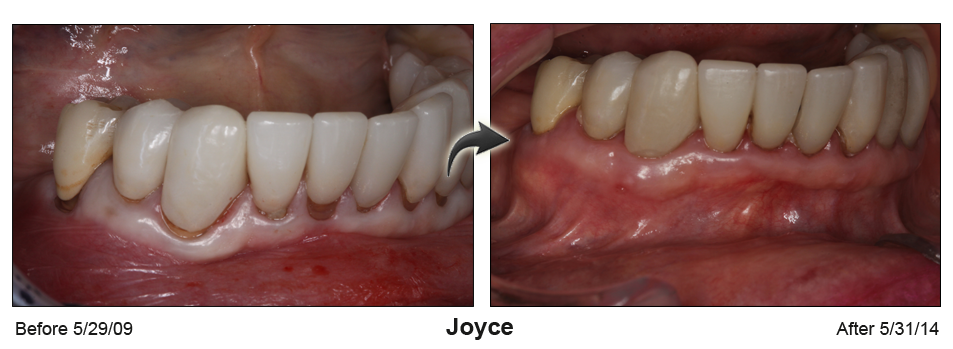 Before-and-after photos of lower teeth with gum surgery to repair gap between receding gums and teeth