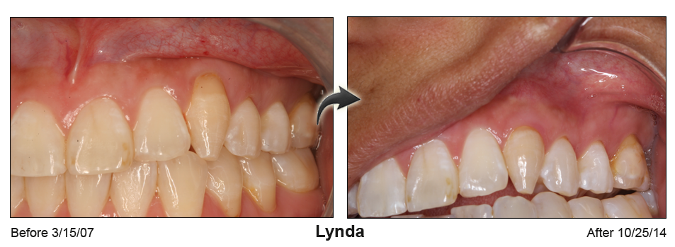 Before-and-after photo of upper teeth with repaired gums