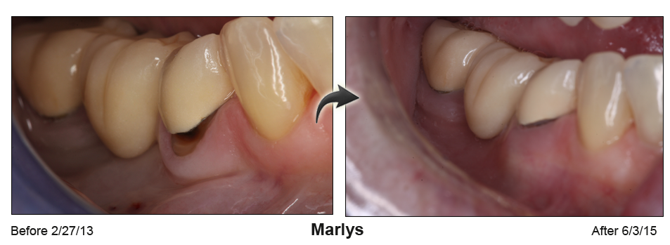 Before-and-after photo of lower teeth with gum surgery to cover a gap between tooth and gum