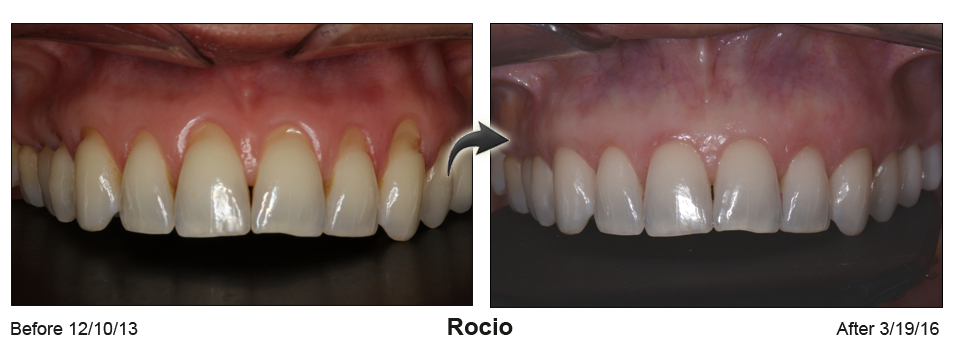 Before-and-after photo of upper teeth with gum surgery to reshape the gum line
