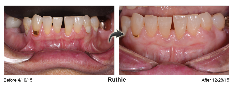 Before-and-after photos of lower teeth with repaired gums