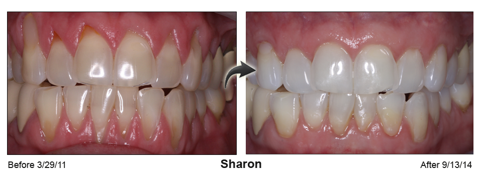 Before-and-after surgery results from repairing receding gums on a straight smile