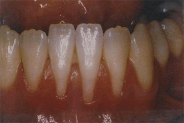 oral cavity showing advanced gum recession and frenum pull