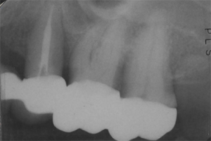 X-ray of teeth #13, 14, and 15 after GoreTex membrane and bone grafting solved bone loss issue