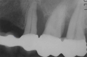 X-ray of severe bone loss of teeth #13, 14, and 15 that were part of a unit bridge