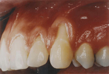 oral cavity showing advanced gum recession