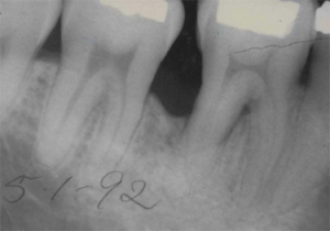 X-ray of first molar after GoreTex membrane and bone grafting solved bone loss issue