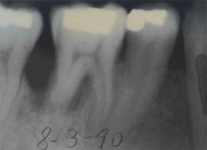X-ray of the first molar with severe bone loss