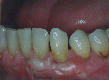 oral cavity showing teeth and gums after soft tissue graft