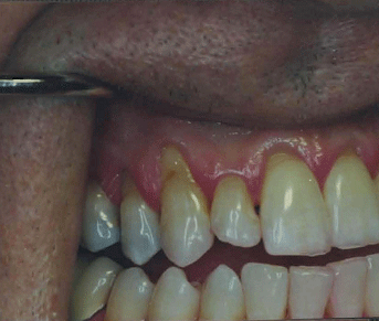 oral cavity showing showing teeth and surrounding gums with advanced gum recession
