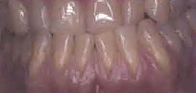 oral cavity showing crowded teeth and receding gums