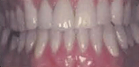 oral cavity showing the results of periodontal treatment and orthodontic therapy