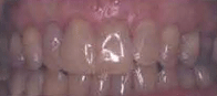 oral cavity showing corrected root exposure