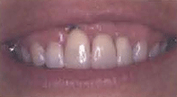 smile showing a partially exposed dental implant in the front