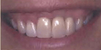 smile showing exposed implant corrected by a gum graft