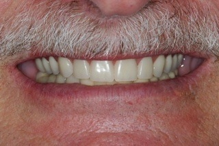 esthetic dentures replaced bad caps
