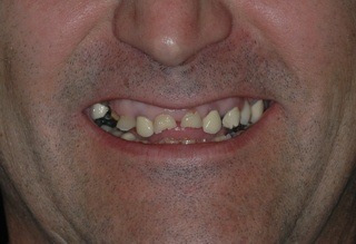 grinding teeth led to severe wear of his dentures
