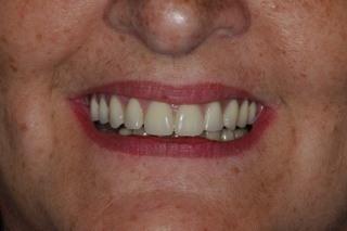 6 dental implants transformed her smile and provided her with a full set of upper teeth